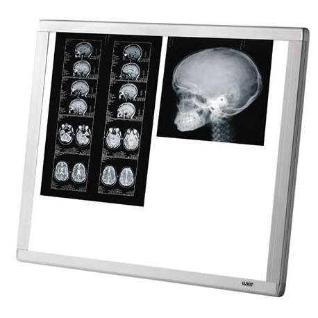 NEGATOSCOPE LED Extra plat AF200 d/c 2 PLAGES