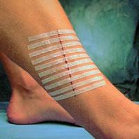 sutures Steri-Strip 3M